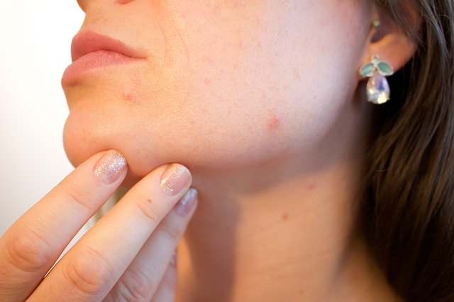how to remove blackheads acne cure